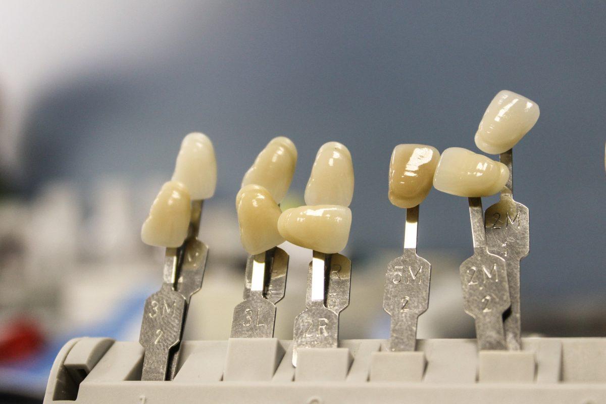 Przepiękne zdrowe zęby oraz powalający prześliczny uśmieszek to powód do zadowolenia.